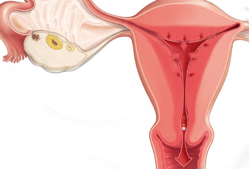 The Lining of Uterus during Period Looks Like